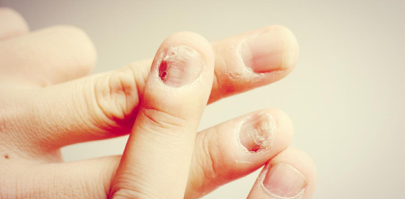 Test Your Nail Disorders Knowledge