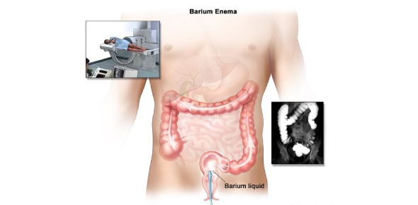 Barium Enema Sample Questions