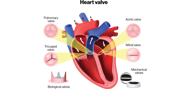 How Much You Know About Valvular Heart Disease? Trivia Quiz