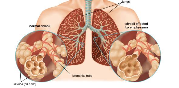 Test: Respiratory System Diseases! Quiz