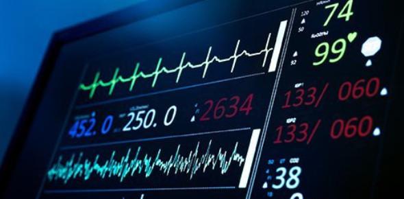 Multiple Choice EKG Quiz Questions