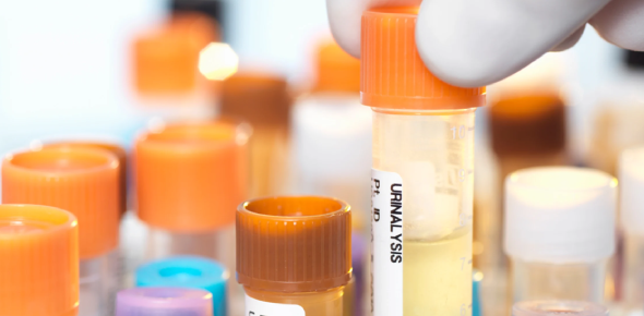Urinalysis Competency Assessment! Trivia Quiz