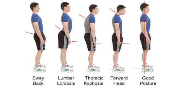 The Posture Test: Trivia! MCQ Quiz