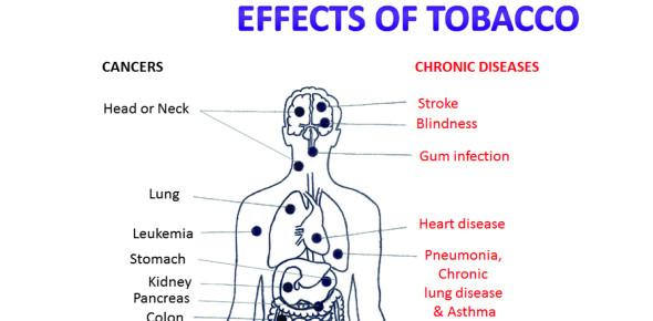 Tobacco Smoking Effects! Trivia Quiz