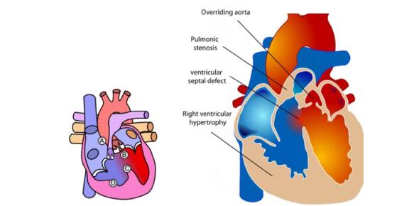 Congenital Heart Disease Quiz: Test!