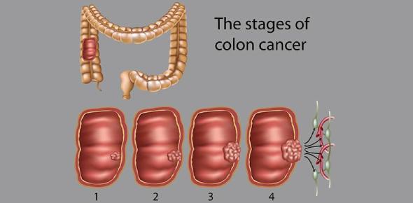 Colon Cancer Quiz! Trivia Questions