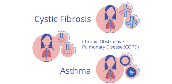 COPD And Cystic Fibrosis Quiz: Trivia