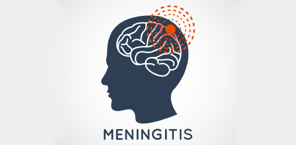 The Meningitis Quiz: Trivia Questions!