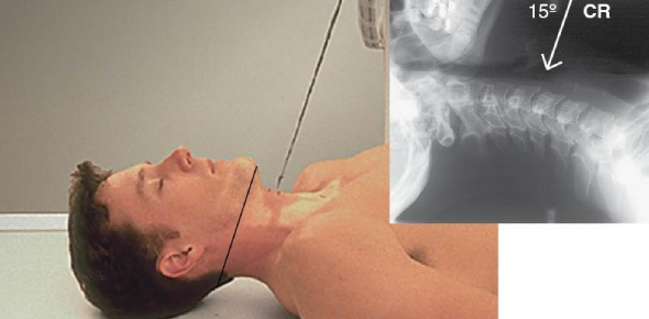 X-ray Exam: Cervical Spine Positioning Quiz!