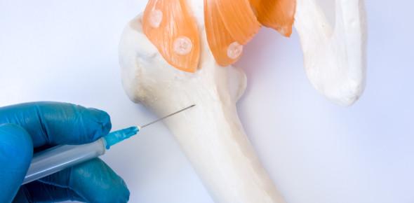 Quiz On Bone Pathology