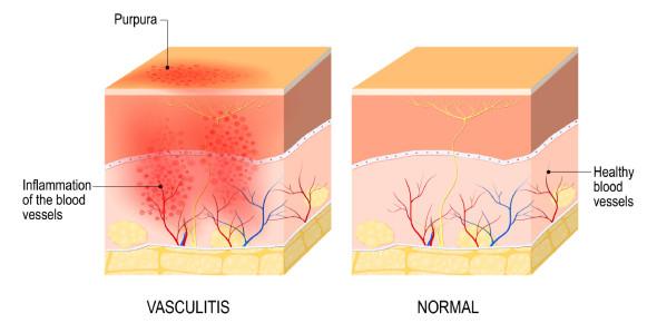 Trivia On Vasculitis: MCQ Quiz! Test