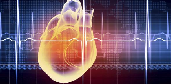 EKG Practice Test Quiz!