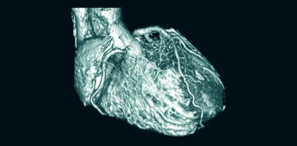 MRI Of The Human Heart Quiz!