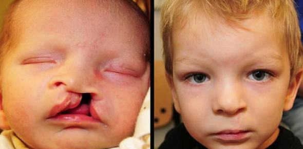 Cleft Lip And Palate: Online Exam! Quiz