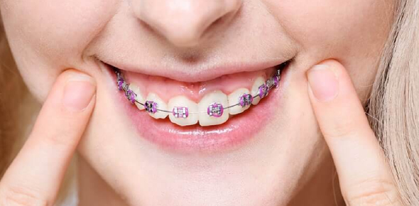 How To Tell If You Need Braces Quiz