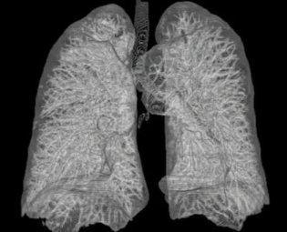 Respiratory Disorders (Part 1)