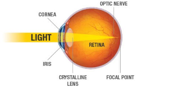 What is the condition when light rays focus in front of the retina instead of on the retina?<br/>