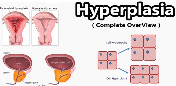 What is Hyperplasia?