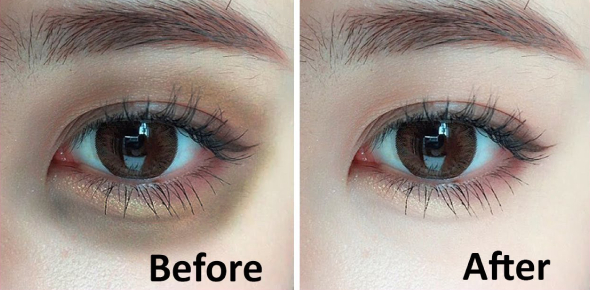How can I remove dark circles very fast?