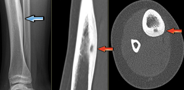 What are the symptoms and causes of osteoid osteoma?