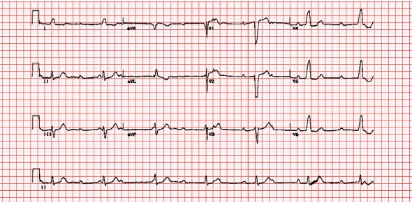 Which of the following agents along with Succinylcholine(Anectine) is used to decrease the likelihood of bradyarrhythmias in children during endotracheal intubation?