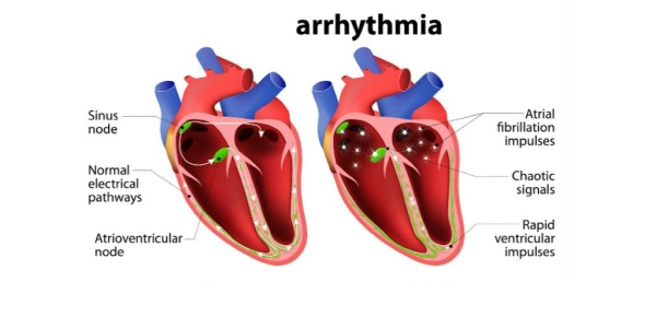 What is the cause of arrhythmia?