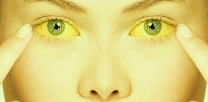 Jaundice happens to be a common heart issue that can be considered a disease, illness, or sickness