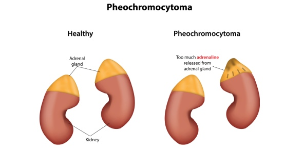 What does the nurse expect to administer to reverse the hypertensive crisis caused by pheochromocytoma?<br/> A client with a history of pheochromocytoma is admitted to the hospital in an acute hypertensive crisis.