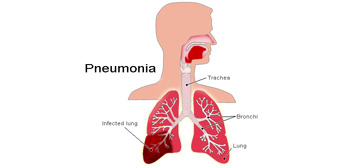 A lot of people have mistaken pneumonia for congestive heart failure. It is vital that you know the