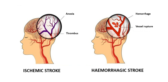 Stroke has two different categories: ischemic and hemorrhagic. Ischemic stroke is when some parts