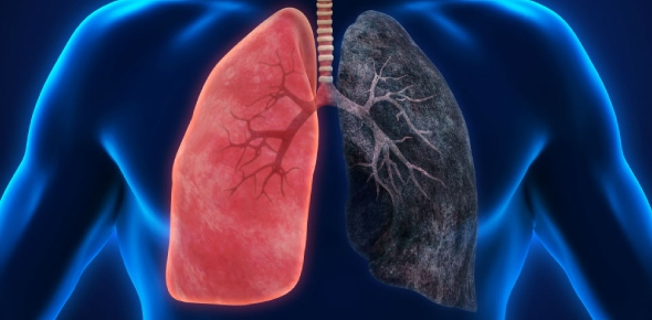 What are the common symptoms of lung cancer?