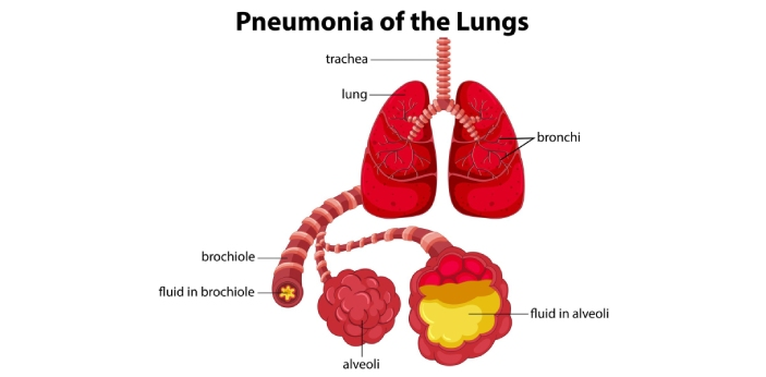 Pneumonia and the lung abscess are a bad infection that affects the lung tissue, and they need