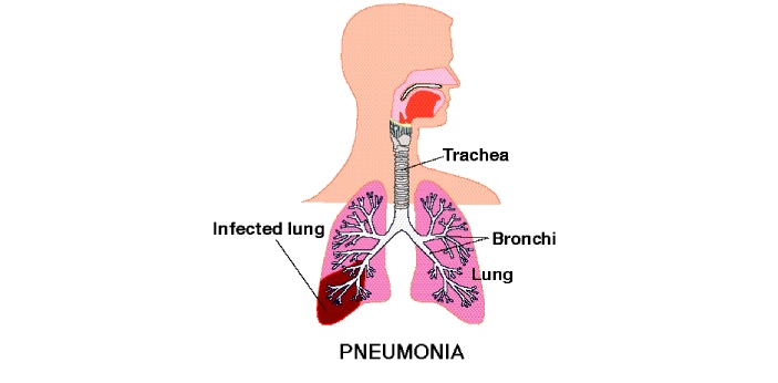 Pneumonia and lung abscesses are medical conditions that have an effect on the lung tissue. They