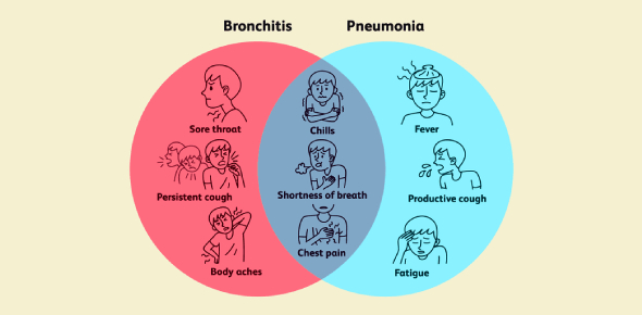 Bronchitis and pneumonia are caused by inflammation of the lungs. Bronchitis is more often viral,