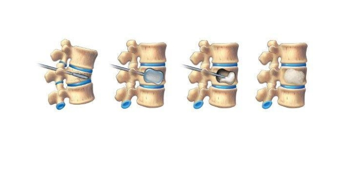 These are known as two techniques that are used on the bones. Vertebroplasty is a technique wherein