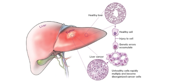Are liver diseases hereditary?