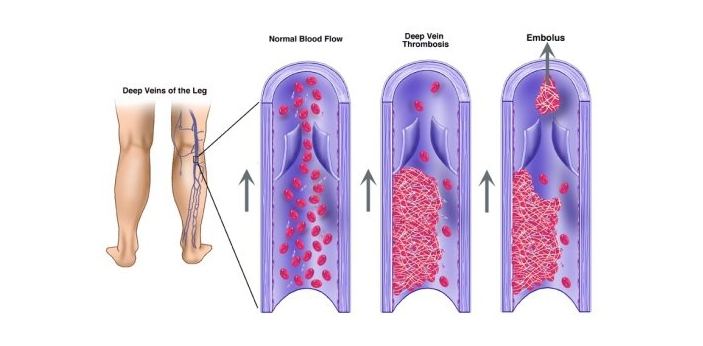 Red blood cells, white blood cells, blood platelets, and plasma, are major constituents of the