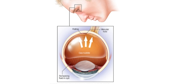 What is pneumatic retinopexy?<br/>