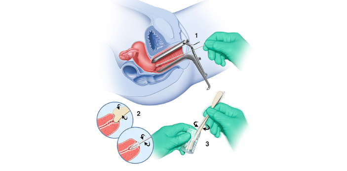 Pap smear and pelvic exam are common gynecological procedures done both at offices and hospitals. A