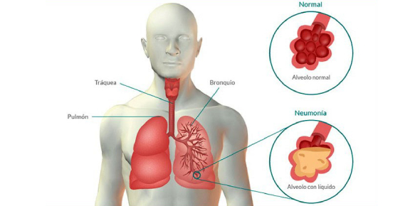 Pneumonia is a disorder of severe inflammation of the lung tissue, which is responsible for