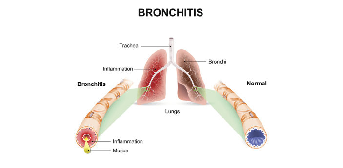 Bronchitis can be defined as the inflammation of the bronchi of the lungs, which causes the cilia