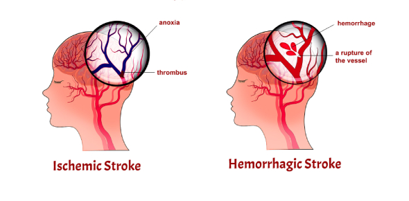 Ischemic and hemorrhagic stroke are two different types of stroke. An ischemic stroke is a type of
