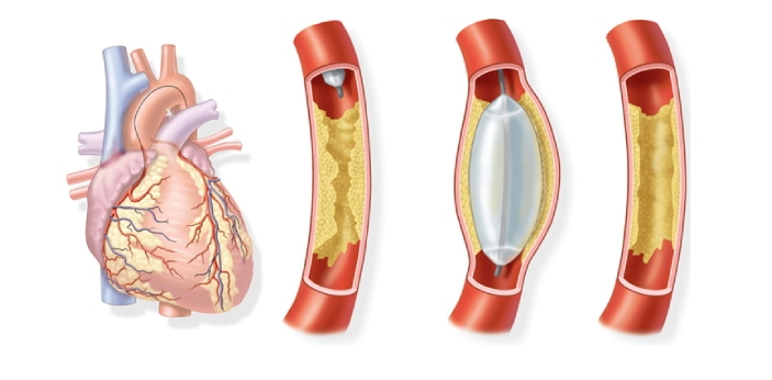 These two types of treatments are known to be recommended for those who are having some heart