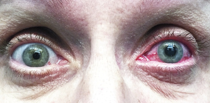 Glaucoma and cataract are eye pathology that can cause loss of vision. These diseases are slowly