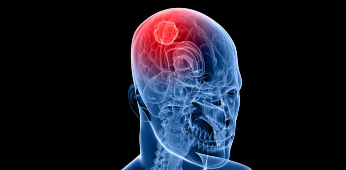 Glioma is a tumor coming from the glial group of cells. These cells are in the brain. They are