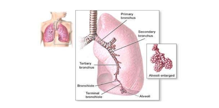 Pneumonia and asthma are two different health conditions with similar symptoms and circumstances.
