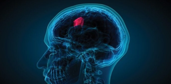 Some people may assume that these two are the same but actually, they are not. Glioma is a type of