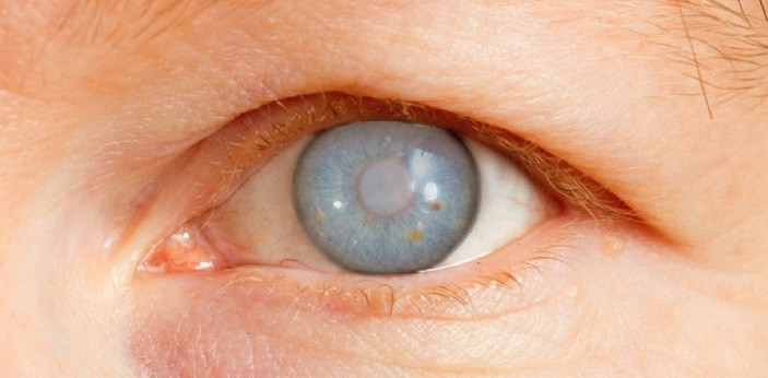 A cataract is known to be changed in the lens of the eye. This would make the lens of the eye