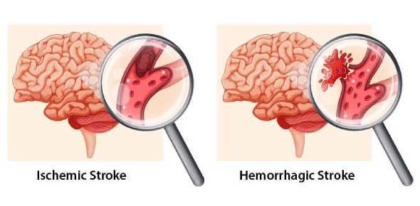 Stroke is a very terrible health condition because it talks about a sudden interruption of the