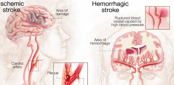 Most strokes that occur are ischemic strokes, which may arise from plaque collecting in your